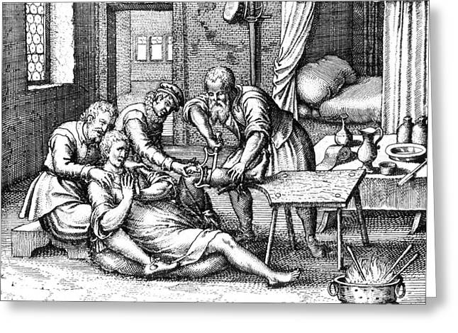 Historical Surgeon Greeting Cards - Gangrene Amputation Of Leg, 17th Century Greeting Card by Science Source