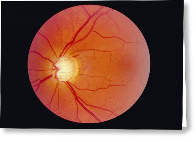 Circle Hook Greeting Cards - Glaucoma Greeting Card by Paul Parker