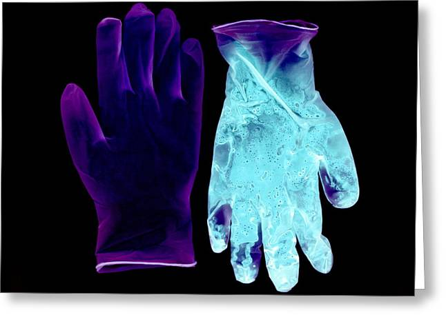 Negative Image Greeting Cards - Gloves Pre- And Post-op, Negative Image Greeting Card by Kevin Curtis