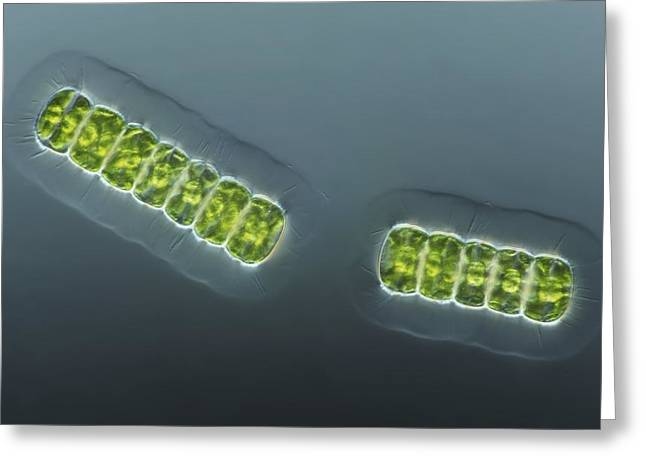 Desmid Greeting Cards - Green Algae, Light Micrograph Greeting Card by Frank Fox