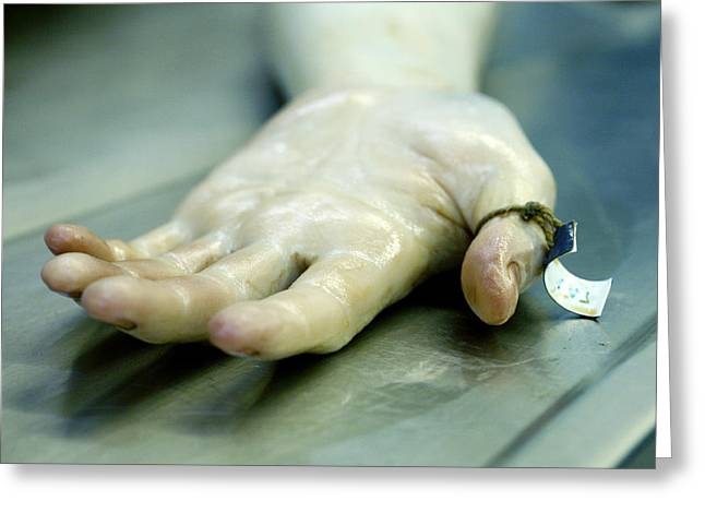 Forensic Pathology Greeting Cards - Hand Of A Corpse Greeting Card by Mauro Fermariello