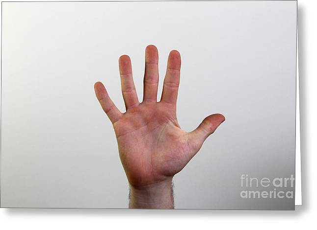 American Sign Language Greeting Cards - Hand Signing Number Five Greeting Card by Photo Researchers, Inc.