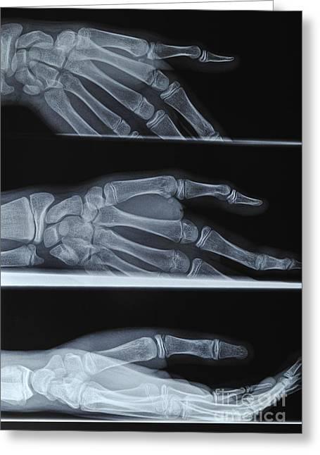 Medical X-ray Greeting Cards - Hand X-ray Greeting Card by Sami Sarkis