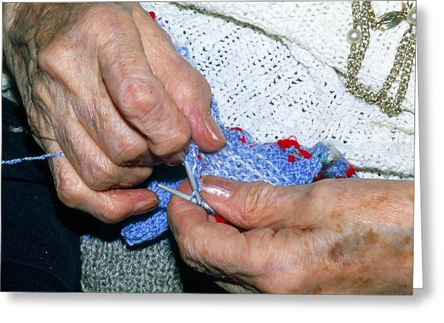 Hand-knitted Greeting Cards - Hands Knitting Affected By Osteoarthritis Greeting Card by Sinclair Stammers