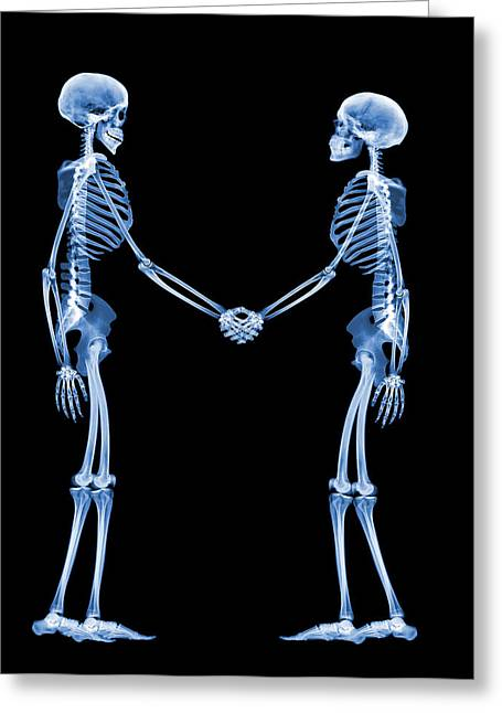 Shaking Hands Greeting Cards - Handshake, X-ray Greeting Card by D. Roberts