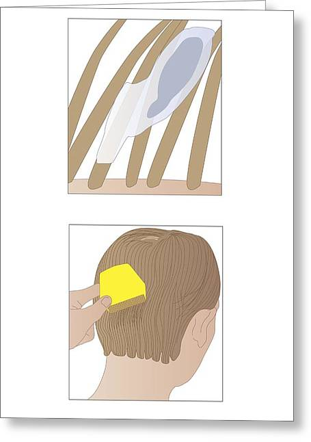 Nit Greeting Cards - Head Lice, Artwork Greeting Card by Peter Gardiner