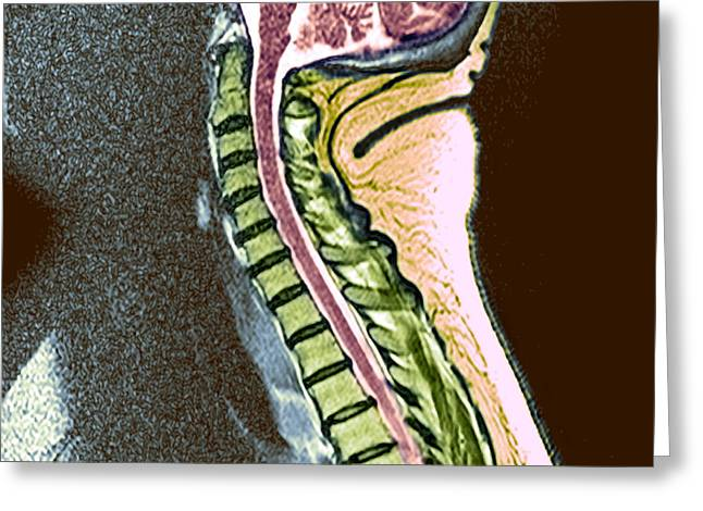 Backbone Greeting Cards - Healthy Spine Greeting Card by Du Cane Medical Imaging Ltd