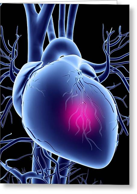Heart Disease Greeting Cards - Heart Attack, Conceptual Artwork Greeting Card by Pasieka
