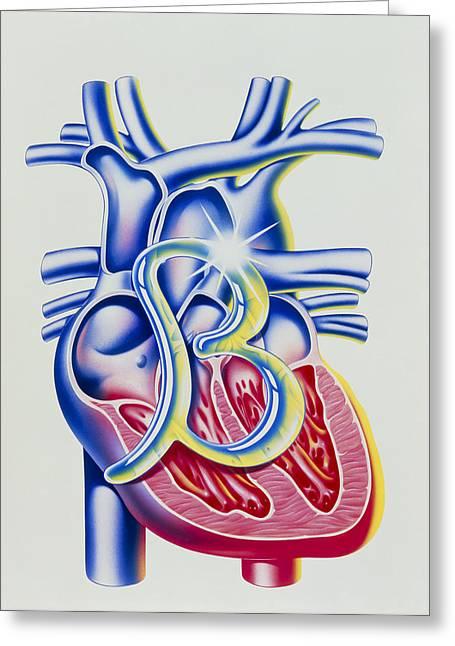 Beta Greeting Cards - Heart Disease: Art Of Heart & Beta Blocker Symbol Greeting Card by John Bavosi