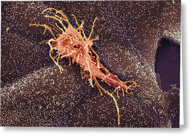 Biological Greeting Cards - Hela Cell, Sem Greeting Card by
