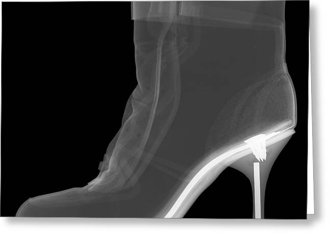 High Heel Boot X-ray Greeting Card by Ted Kinsman