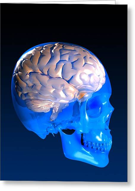 Psychological Process Greeting Cards - Human Brain And Skull, Artwork Greeting Card by Victor Habbick Visions