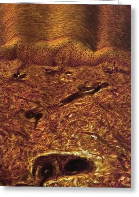 Connective Tissue Greeting Cards - Human Skin, Light Micrograph Greeting Card by Robert Markus