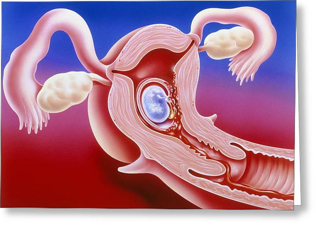 Embryo Greeting Cards - Illustration Of Abortion Of An Early Embryo Greeting Card by John Bavosi