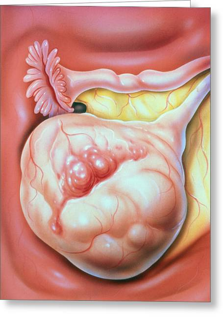 Ovaries Greeting Cards - Illustration Of Carcinoma Of The Ovary Greeting Card by John Bavosi