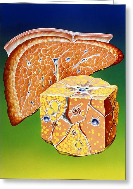 Liver Greeting Cards - Illustration Of Septal Cirrhosis Of The Liver Greeting Card by John Bavosi