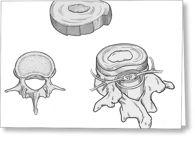 Disk Greeting Cards - Illustration Of Spinal Disks Greeting Card by Science Source