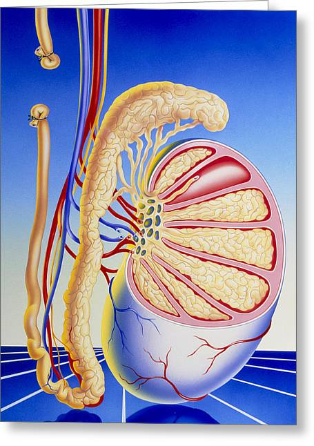 Epididymis Greeting Cards - Illustration Of Vasectomy With Structure Of Testis Greeting Card by John Bavosi