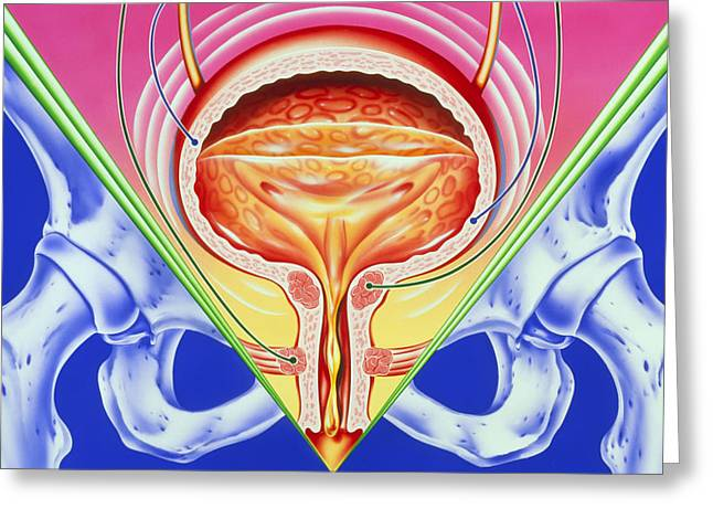 Urethra Greeting Cards - Incontinence Greeting Card by John Bavosi