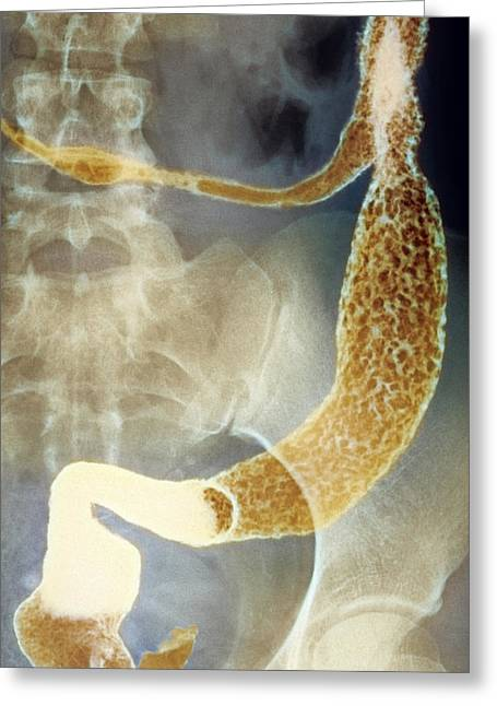 Rectum Greeting Cards - Inflamed Colon And Rectum, X-ray Greeting Card by Cnri