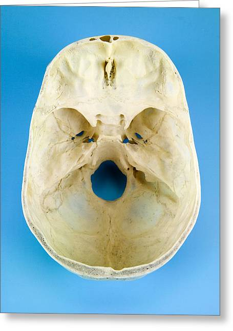 Ethmoid Bone Greeting Cards - Interior Of A Human Skull, Top View Greeting Card by Paul Rapson