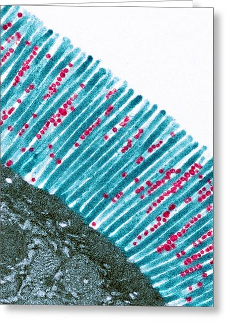 Microfilaments Greeting Cards - Intestinal Microvilli, Tem Greeting Card by Steve Gschmeissner