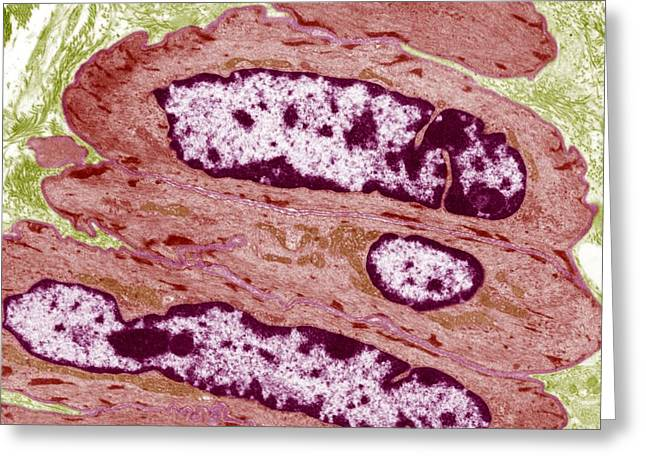Basement Membrane Greeting Cards - Intestinal Smooth Muscle Cells, Tem Greeting Card by Steve Gschmeissner