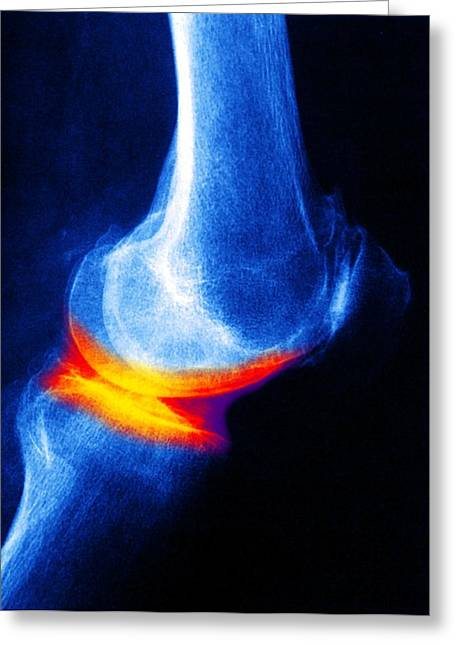 Arthritic Greeting Cards - Joint Disease, X-ray Greeting Card by Pasieka
