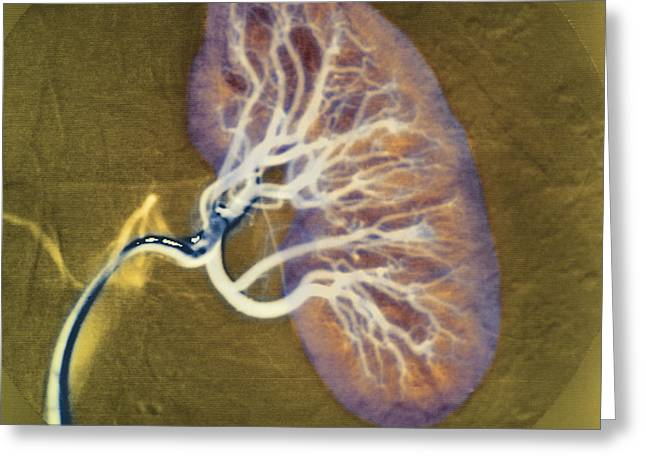 Angiogram Greeting Cards - Kidney Blood Supply Greeting Card by