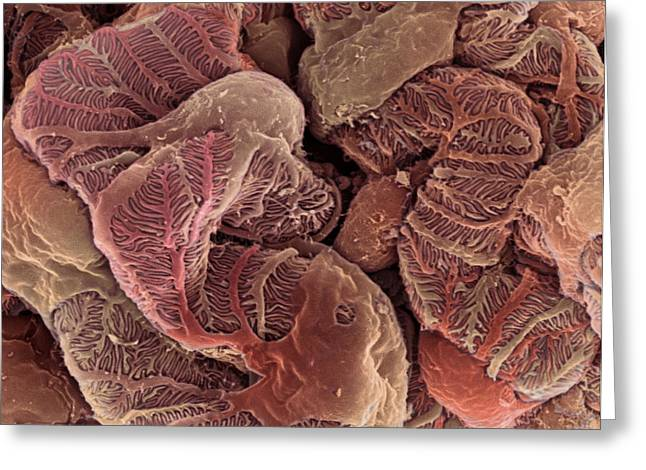Interwoven Greeting Cards - Kidney Podocyte Cells, Sem Greeting Card by Steve Gschmeissner