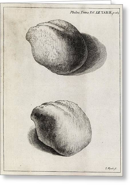 Urology Greeting Cards - Kidney Stone, 18th Century Greeting Card by Middle Temple Library