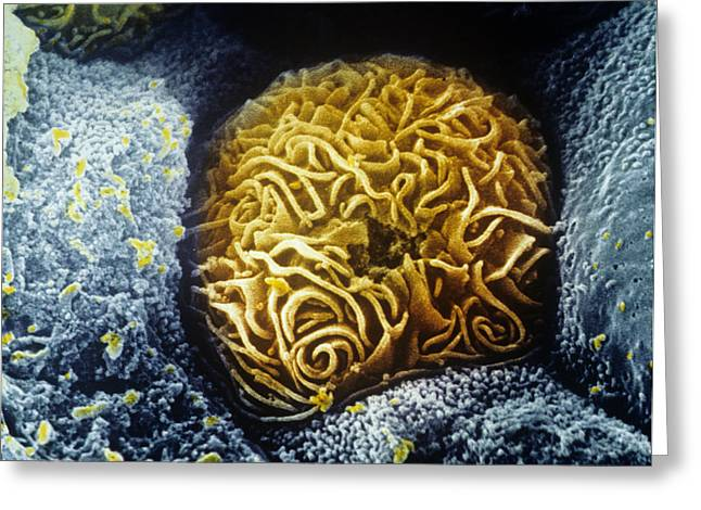 Tubules Greeting Cards - Kidney Tubule Cell, Coloured Sem Greeting Card by Cnri