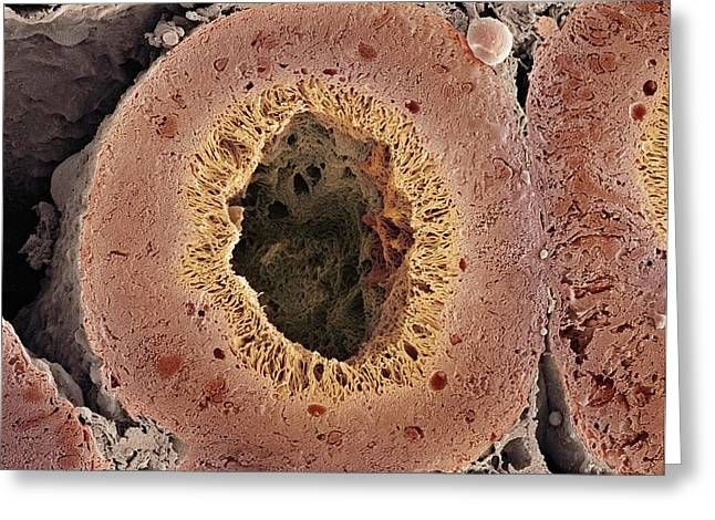 Tubules Greeting Cards - Kidney Tubule, Sem Greeting Card by Thomas Deerinck, Ncmir