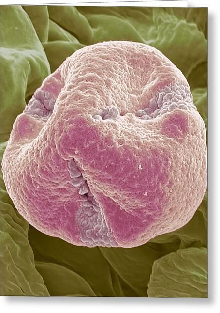 Sem Greeting Cards - Kiwi Fruit Pollen Grain, Sem Greeting Card by Steve Gschmeissner