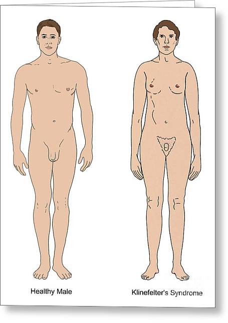 Disability Greeting Cards - Klinefelters Syndrome & Healthy Male Greeting Card by Science Source