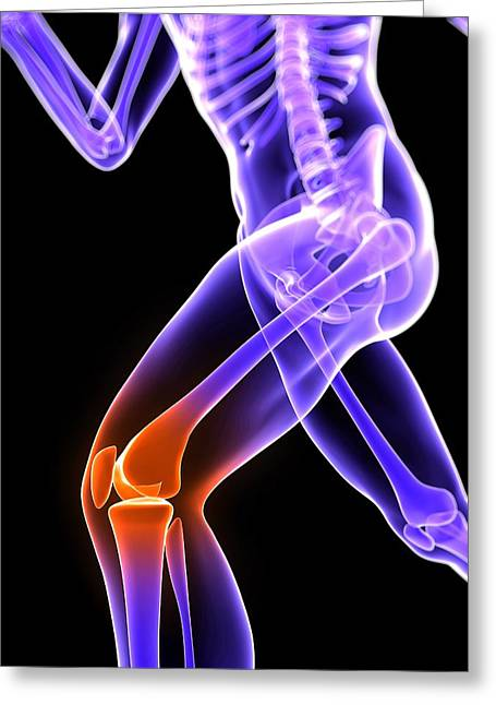 Knee Pain, Conceptual Artwork Greeting Card by Sciepro