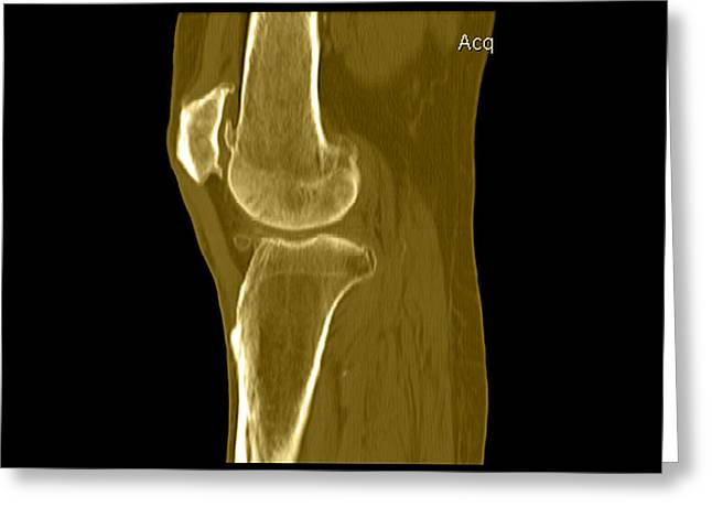 Knee Showing Osteoporosis Greeting Card by Medical Body Scans