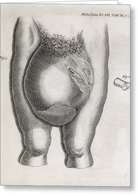 80s Greeting Cards - Large Hernia, 18th Century Greeting Card by Middle Temple Library
