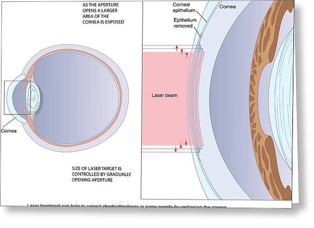 Procedures Greeting Cards - Laser Eye Surgery, Artwork Greeting Card by Peter Gardiner