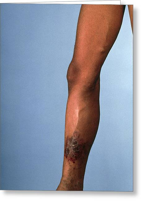 Vascular Condition Greeting Cards - Leg Suffering From Chronic Venous Insufficiency Greeting Card by