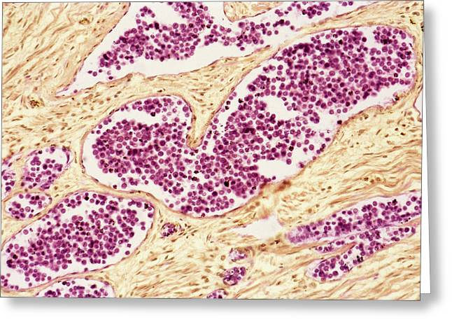 Proliferate Greeting Cards - Leukaemia Blood Cells, Light Micrograph Greeting Card by Steve Gschmeissner