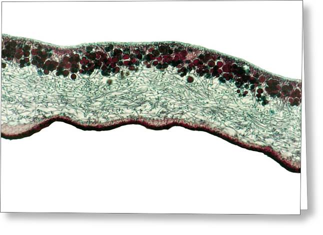 Fungi Greeting Cards - Lichen, Light Micrograph Greeting Card by Steve Gschmeissner