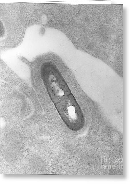 Micrography Greeting Cards - Listeria Bacterium Greeting Card by Science Source