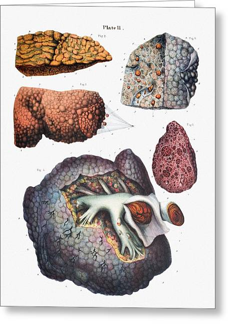 Pathological Greeting Cards - Liver Cirrhosis Greeting Card by Mehau Kulyk