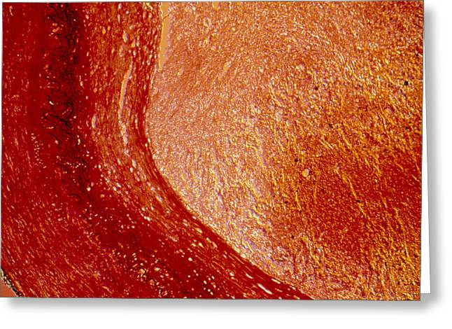 Vascular Condition Greeting Cards - Lm Of Cross-section Of Artery With Atherosclerosis Greeting Card by Pasieka