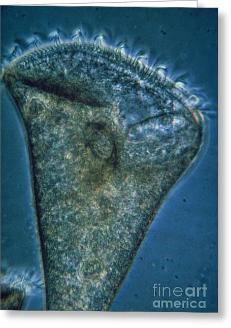 Ciliate Greeting Cards - Lm Of Stentor Sp., A Ciliate Protozoan Greeting Card by Eric Grave