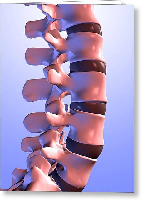 Vertebra Greeting Cards - Lumbar Vertebrae Of The Human Spine Greeting Card by Pasieka