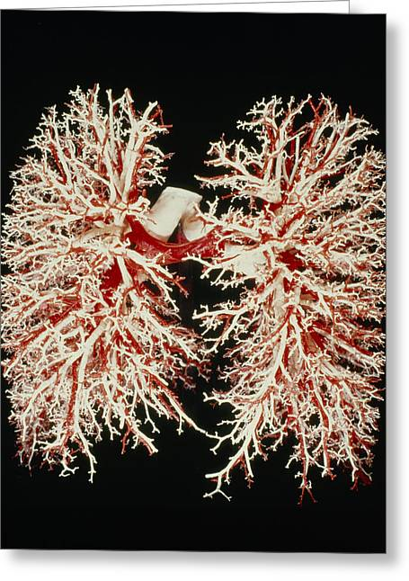 Resin Greeting Cards - Lung Airways Greeting Card by .