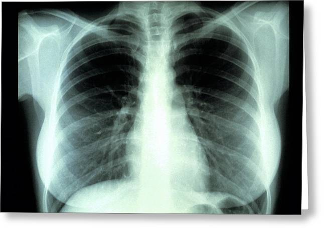 Chest Greeting Cards - Lungs, X-ray Greeting Card by Cnri