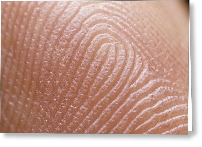 Sweat Greeting Cards - Macrophoto Of Index Finger: Keratinised Epidermis Greeting Card by Martin Dohrn.